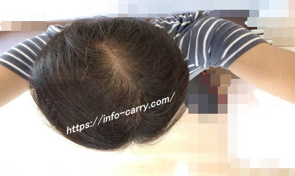 ミノタブを服用中の頭皮